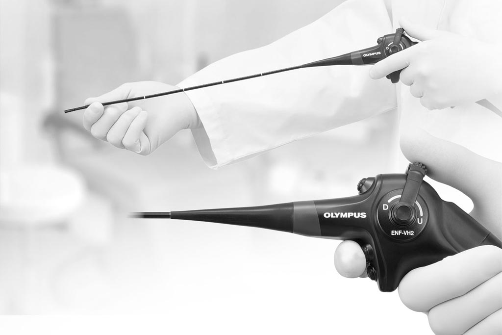 Image: The ENF-VH2 video rhino-laryngoscope (Photo courtesy of Olympus Medical).