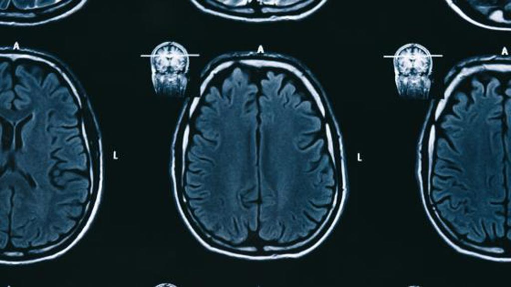 Image: Subtle Medical's AI product SubtleGAD reduces the gadolinium needed during MRI exams without sacrificing diagnostic quality (Photo courtesy of iStock).