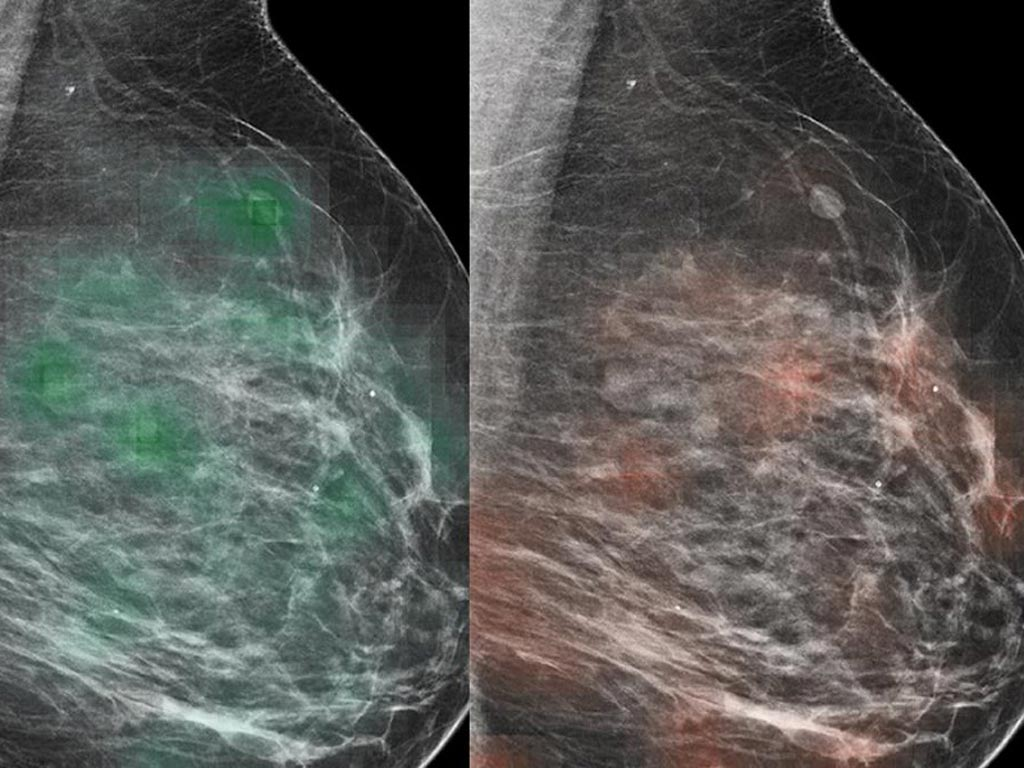Image: An AI tool-radiologist combo can identify breast cancer with approximately 90% accuracy (Photo courtesy of MDN).