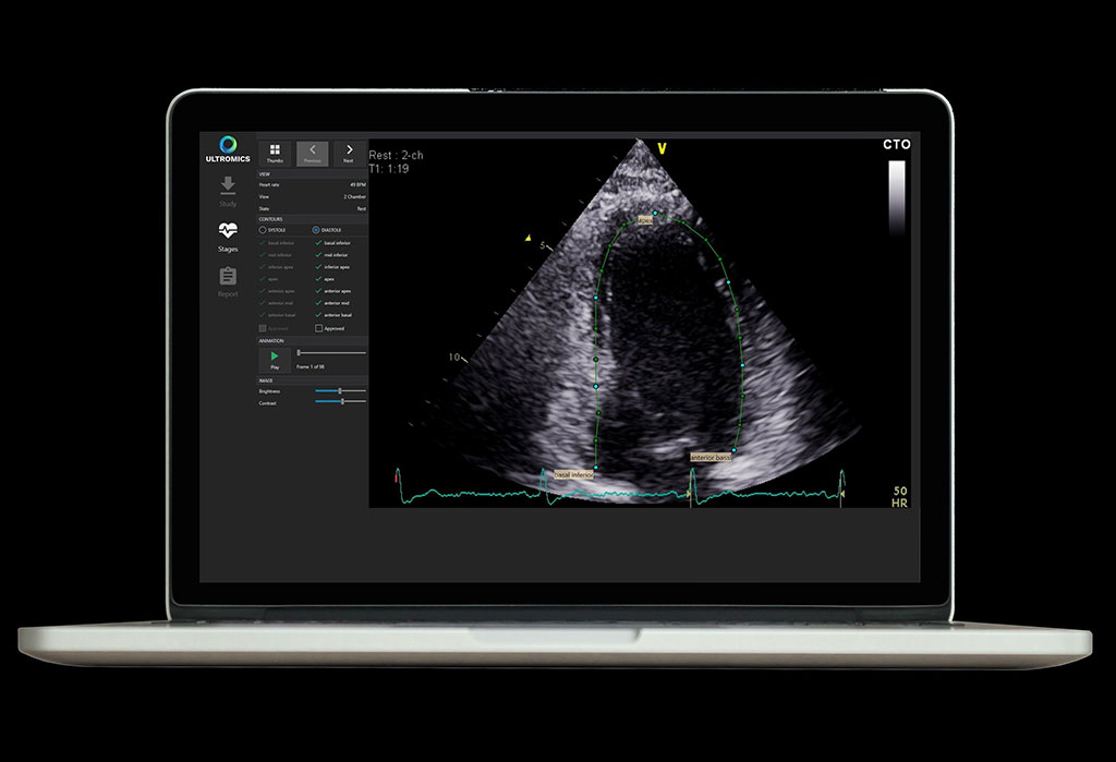 Image: Auto contouring generated by EchoGo, calculating key cardiac parameters (Photo courtesy of Ultromics)