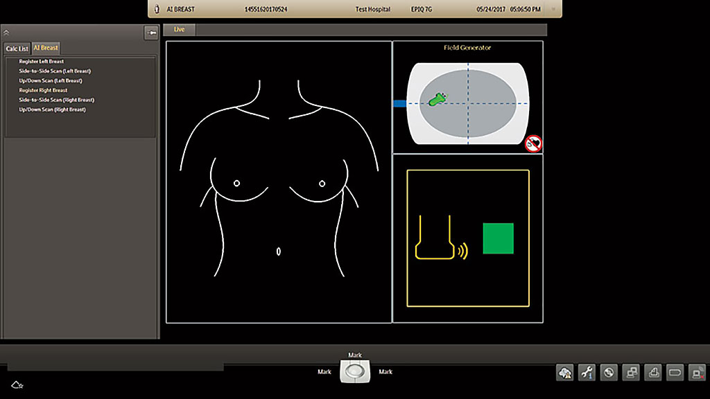 Image: AI Breast (Photo courtesy of Philips Healthcare)