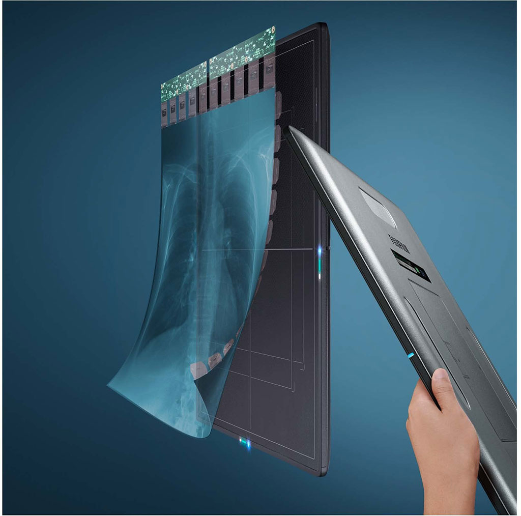 Image: Glass-Free Digital Radiography Detector (Photo courtesy of FUJIFILM Medical Systems U.S.A., Inc.)