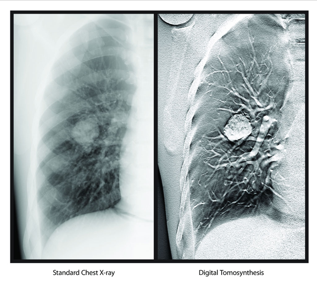 Image: Digital Tomosynthesis (Photo courtesy of Carestream Health)