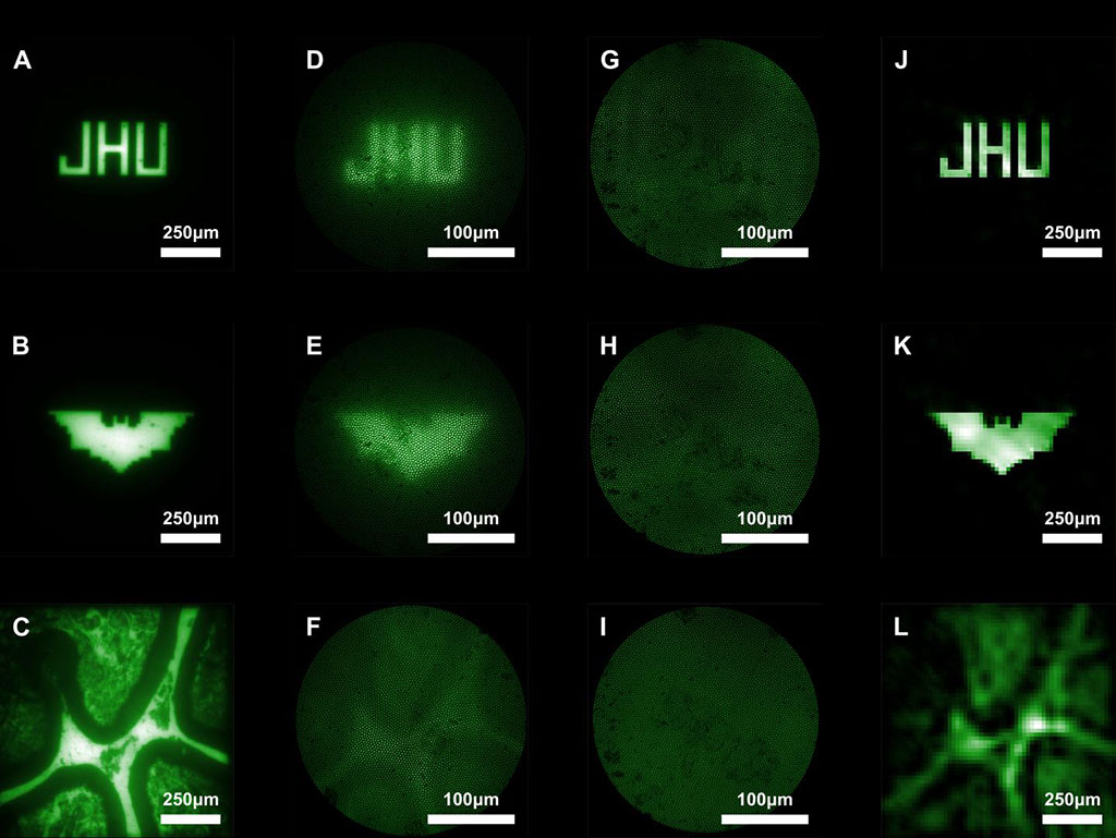 Image: Images captured with conventional miniature endoscopes and the new lensless microendoscope (Photo courtesy of Mark Foster/ JHU)