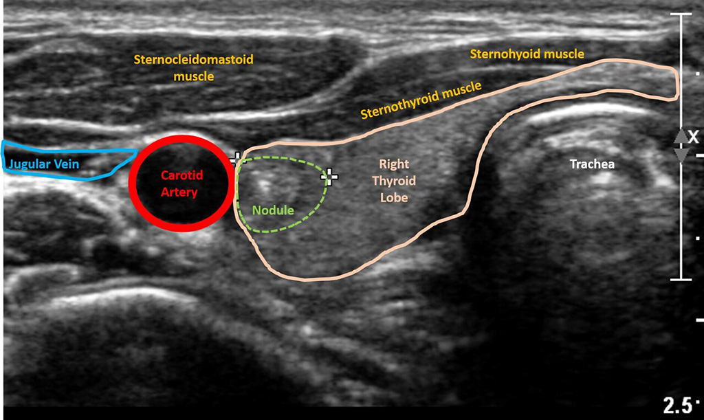 Image: Ultrasound image of thyroid nodule (Photo courtesy of Sidney Kimmel Cancer Center -- Jefferson Health)