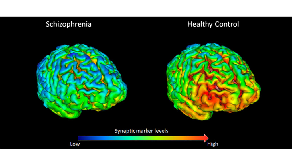 Image: Protein deficiency in neural synapses could explain schizophrenia (Photo courtesy of KCL)