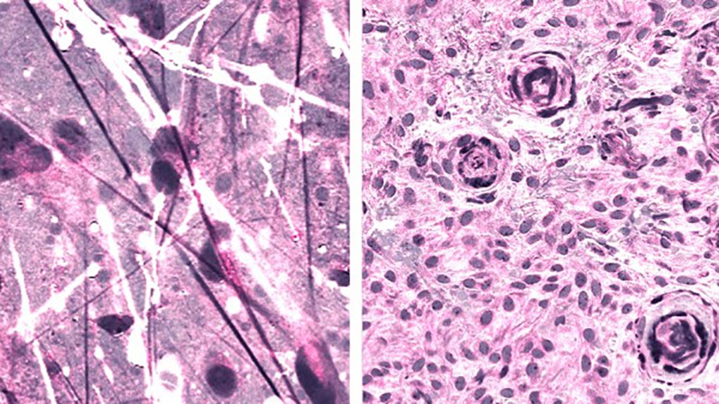 Image: Stimulated Raman histologic images of diffuse astrocytoma (left) and meningioma (right) (Photo courtesy of Daniel Orringer).