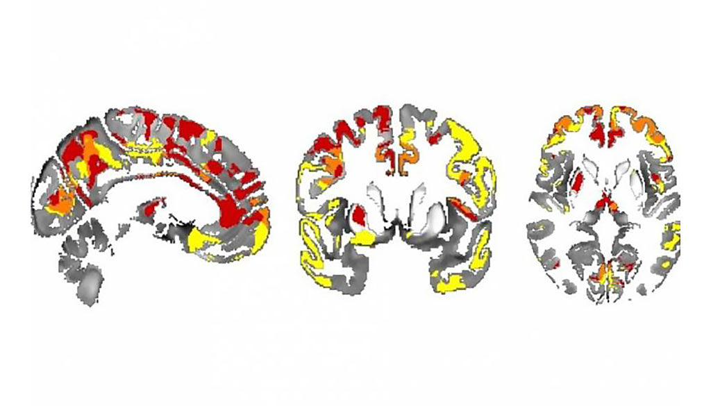 Image: Iron depositions in the brain can track Parkinson's evolvement (Photo courtesy of UCL)