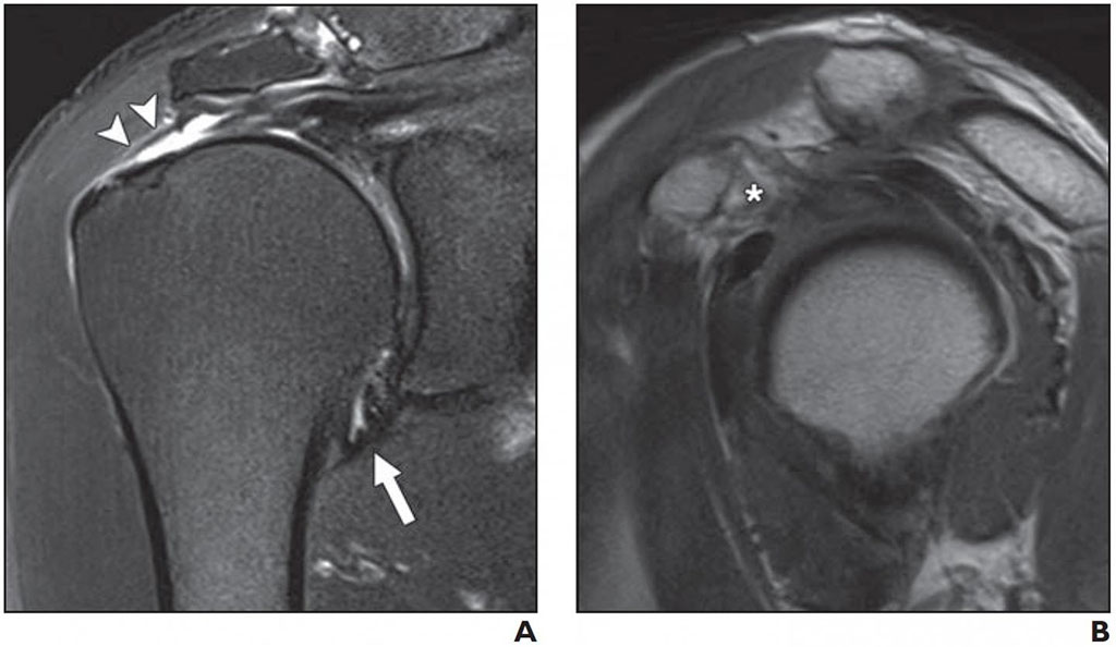 Image: Normal joint capsule at axillary recess (A); Full-thickness tear of supraspinatus tendon (B) (Photo courtesy AJR)