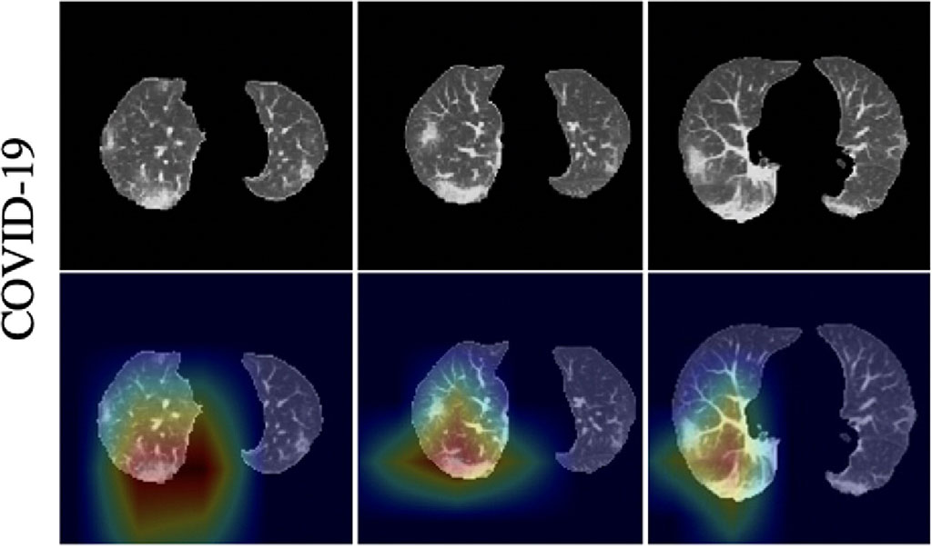 Image: Heatmaps of COVID-19 activation regions (Photo courtesy of Wuhan Huangpi People\'s Hospital)
