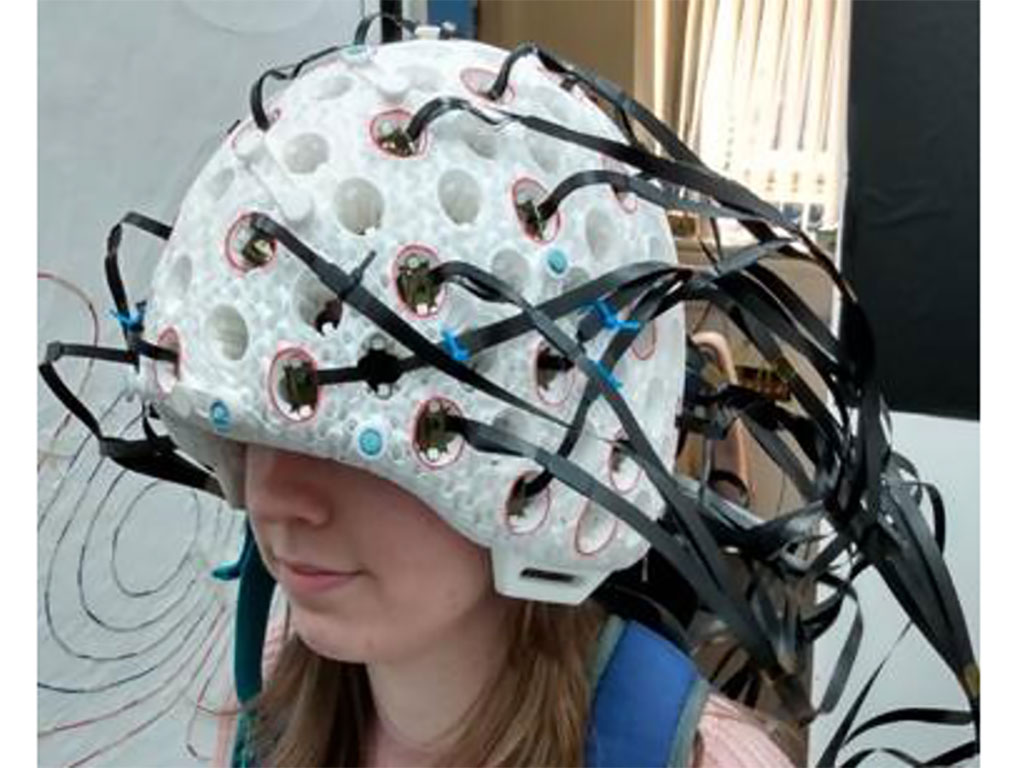 Image: The 49 channel 3D printed whole head brain scanner (Photo courtesy of the University of Nottingham)