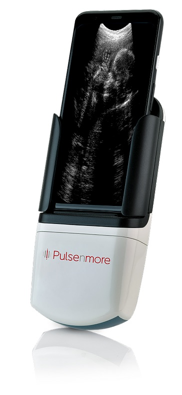 The PulseNmore dockable ultrasound solution (Photo courtesy of PulseNmore)