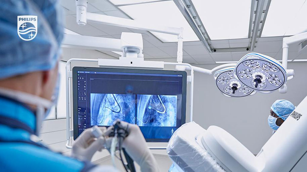 Image: The Azurion Lung Edition combines CBCT 3D images with live IGT X-ray guidance (Photo courtesy of Philips)