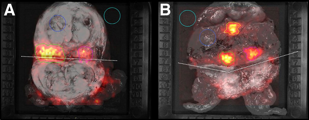 Image: CLI manifesatations on excised tissues (Photo courtesy of Lightpoint Medical)