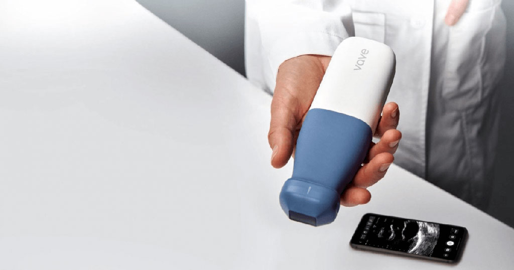 Image: The Vave handheld ultrasound scanner (Photo courtesy of Vave Health)