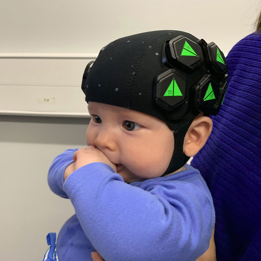 Image: A baby wearing the HD-DOT imaging cap (Photo courtesy of UCL)