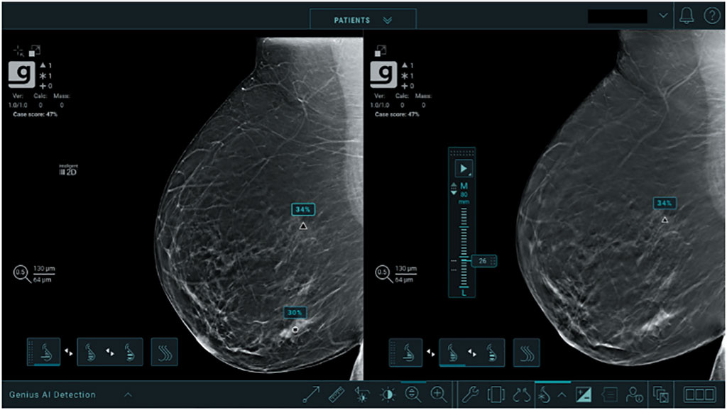 Image: The Genius AI Detection software (Photo courtesy of Hologic, Inc.)