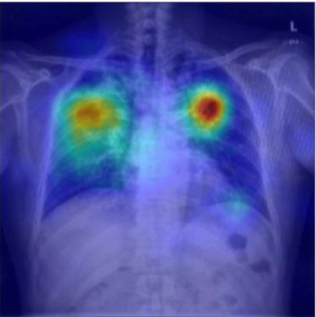 Image: TB can be detected via smartphone photos in resource poor settings (Photo courtesy of RSNA)