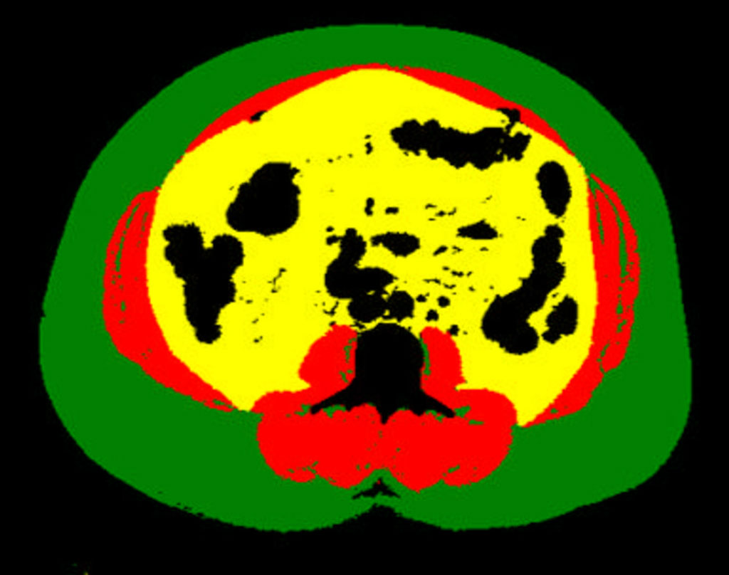 Image: Example of body composition analysis of an abdominal CT slice with subcutaneous fat in green, skeletal muscle in red, and visceral fat in yellow (Photo courtesy of UCSF)