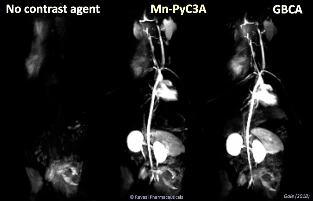 Image: MRI manganese-based contrast agents are as efficient as gadolinium, but less toxic (Photo courtesy of Eric Gale/ MGH)