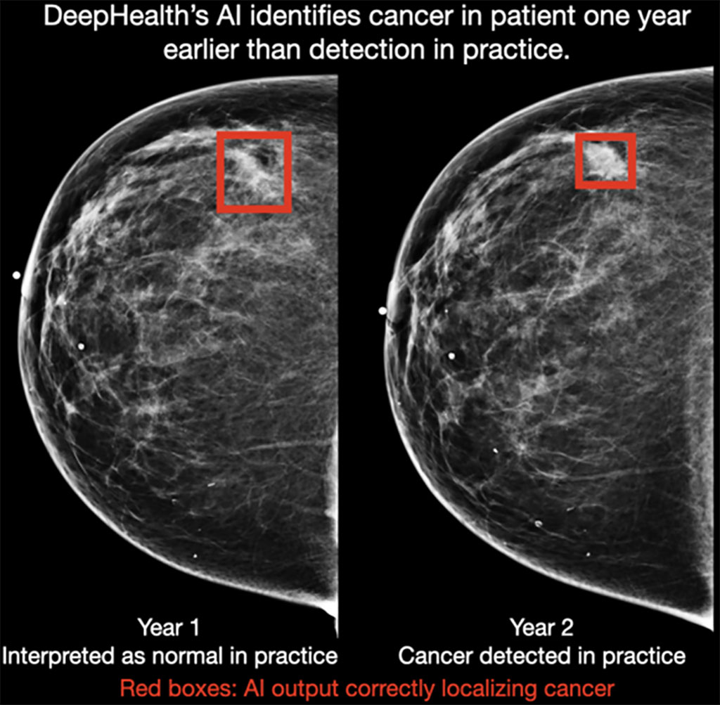 Image: DeepHealth`s AI identifies cancer in a patient one year earlier than detected in practice (Photo courtesy of DeepHealth)