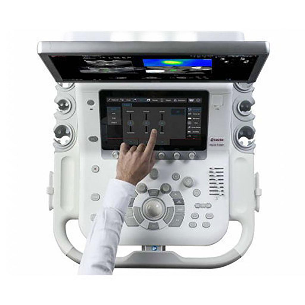 Image: The MyLab X8 Ultrasound System (Photo courtesy of Esaote)