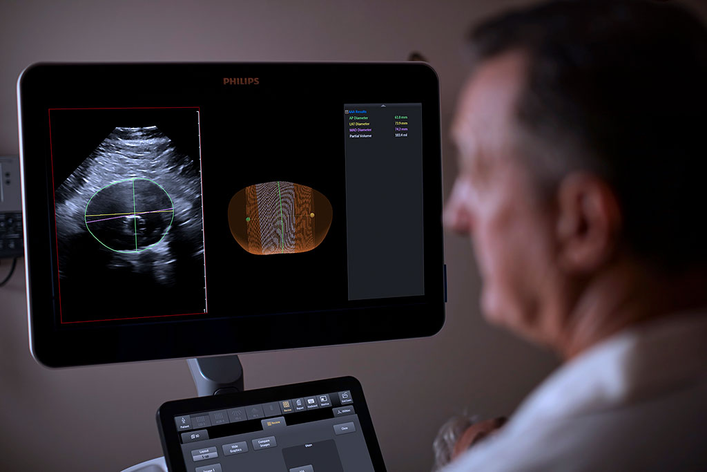 Image: A new ultrasound model helps monitor AAA progression (Photo courtesy of Philips)