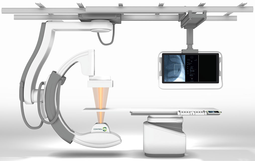 Image: The ControlRad Select optimizes the X-ray beam to reduce radiation by 85% (Photo courtesy of ControlRad)