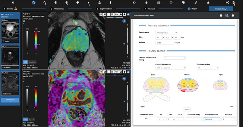 Image: The qp-Prostate suite dashboard (Photo courtesy of Quibim)