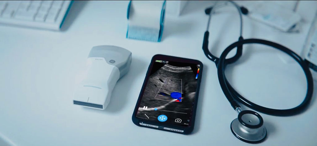 Image: The GE Healthcare Vscan Air probe and app (Photo courtesy of GE Healthcare)
