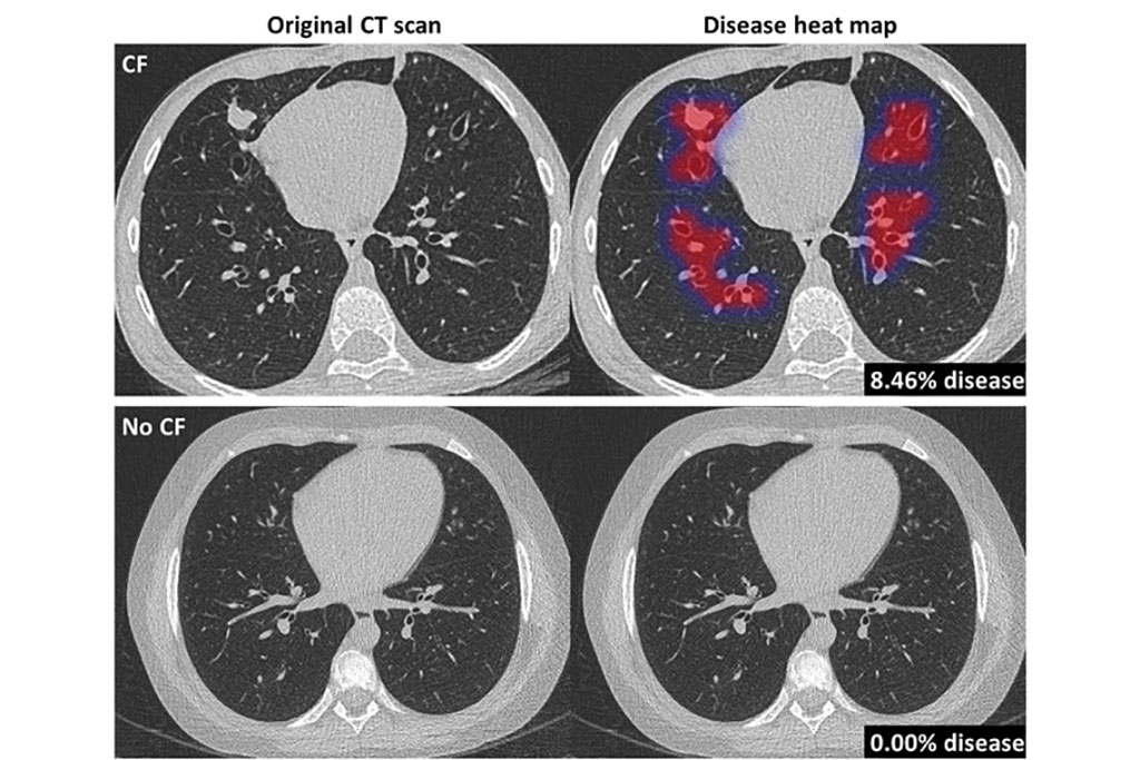 Image: Original CT scan (L) and Pragma-AI overlay heat map (R) in the lungs of a CF patient and healthy control (Photo courtesy of Thirona)