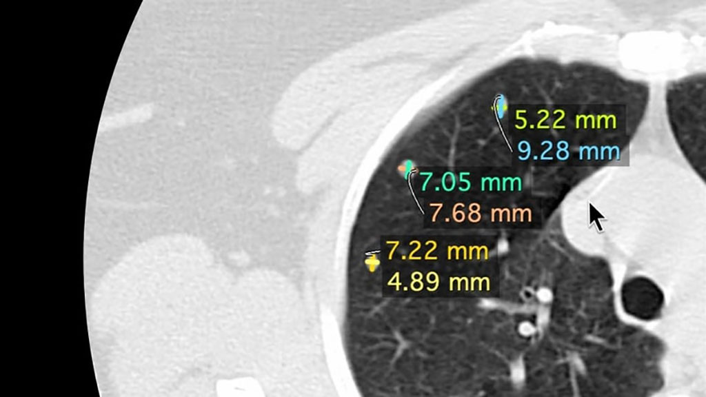 Image: NineMeasures automaticall measure a lung nodules axes (Photo  courtesy of Nines)