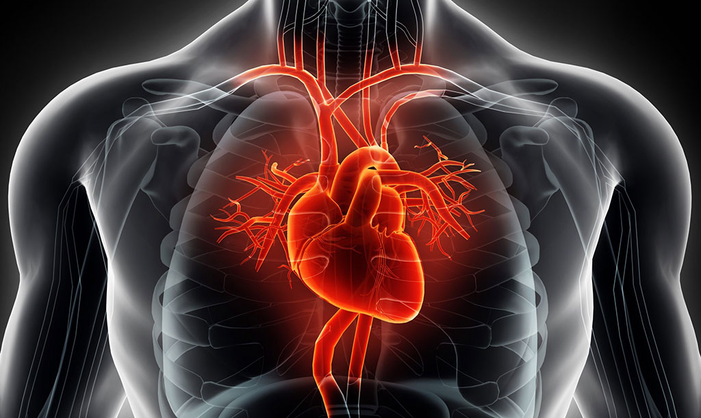 Image: Early CMR can help identify broken hearts (Photo courtesy of Getty Images)