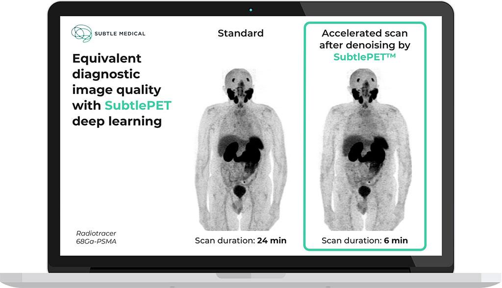 Image: Equivalent diagnostic image quality of SubtlePET software (Photo courtesy of Subtle Medical)