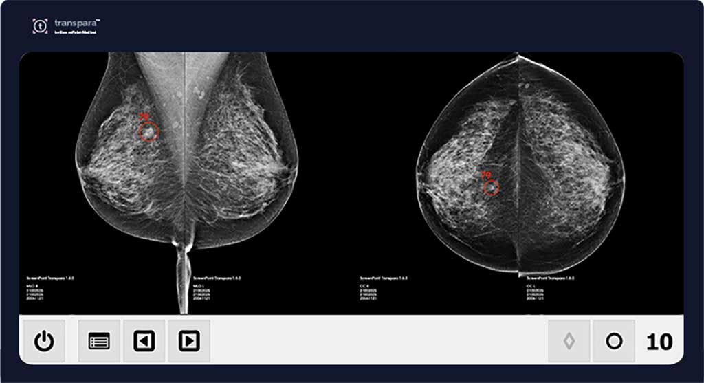 Image: Transpara AI can reduce mammography workload (Photo courtesy of ScreenPoint Medical)