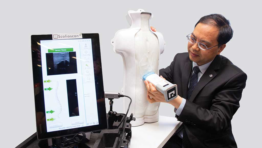 Image: The Scolioscan device used for ultrasound screening in Hong Kong (Photo courtesy of PolyU)