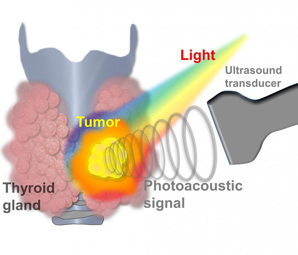 Image: PA signal generated when laser light irradiates a thyroid nodule (Photo courtesy of POSTECH)