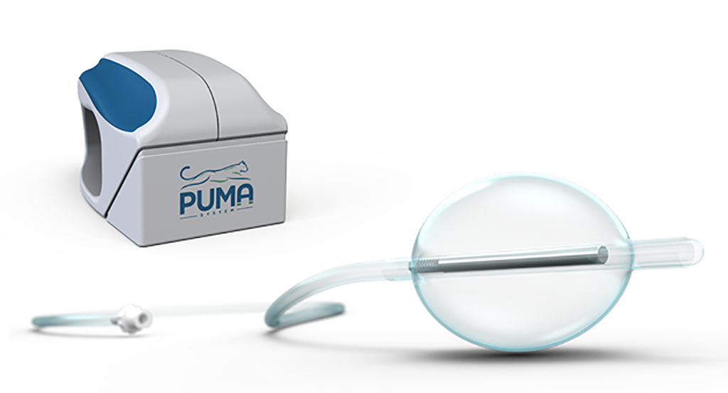 Image: The PUMA-G external and balloon magnets (Photo courtesy of CoapTech)