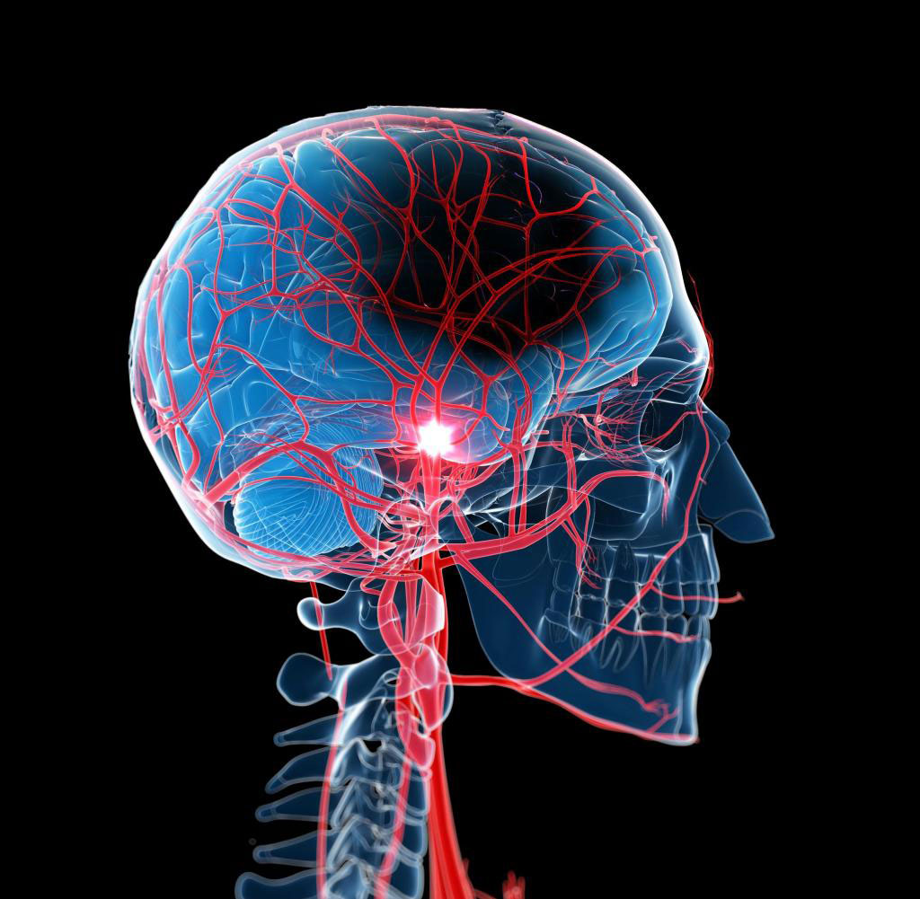Image: Novel nanowire sensors detect cerebral blood flow non-invasively (Photo courtesy of Getty Images)