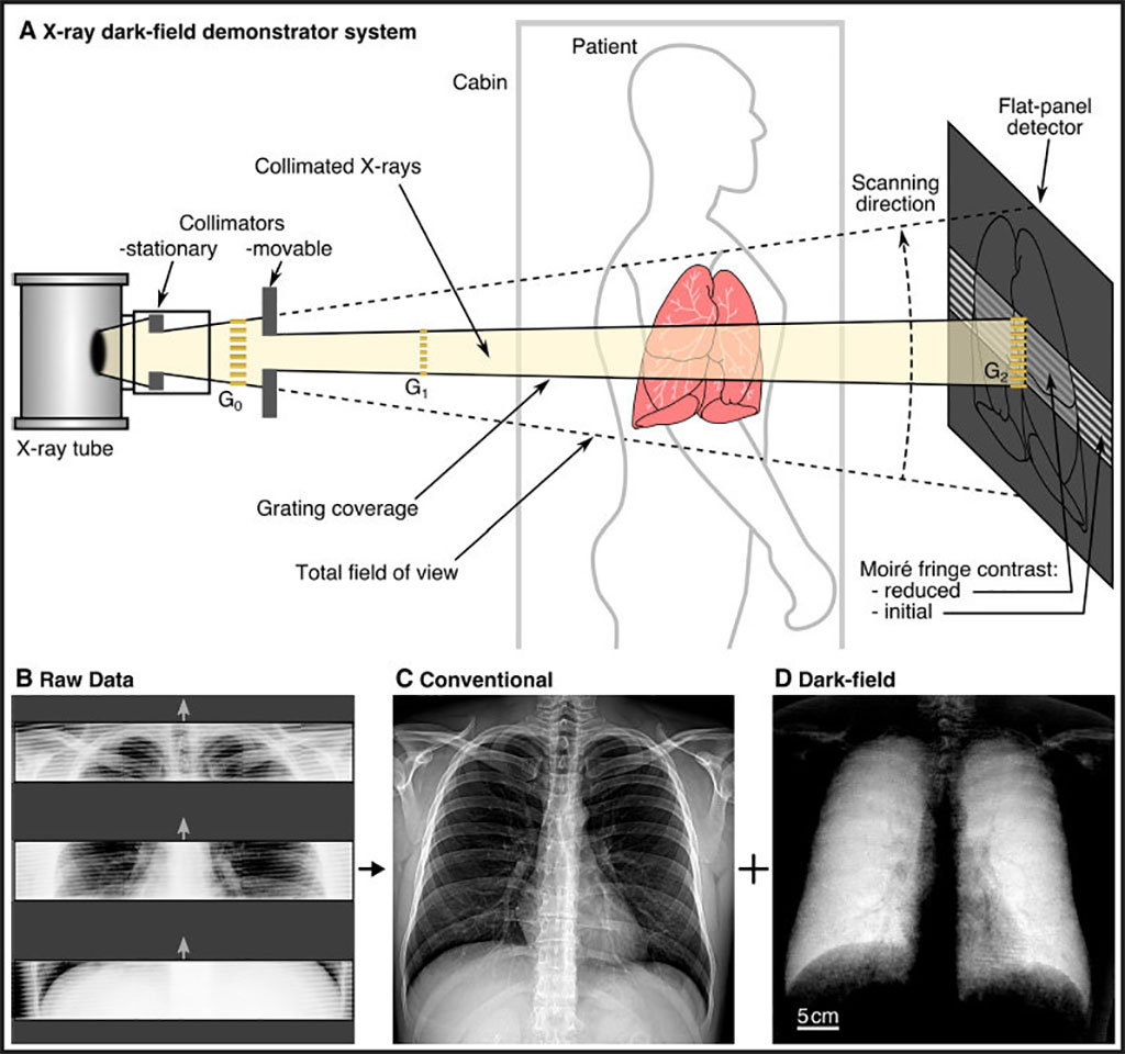 Image: Schematic of the prototype dark-field X-ray system (Photo courtesy of Radiology)