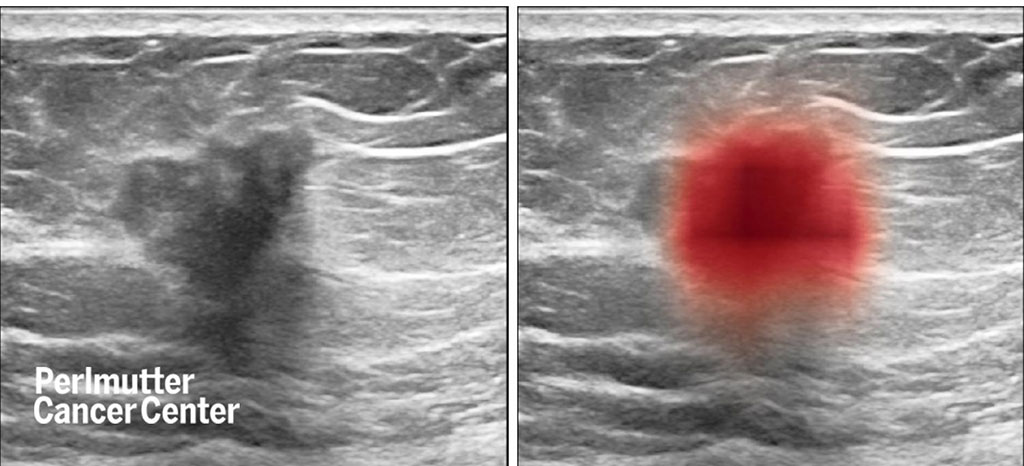 Image: Breast ultrasound images show cancer (at left, as dark spot in center and, at right, in red, as highlighted by a computer) (Photo courtesy of Nature Communications)