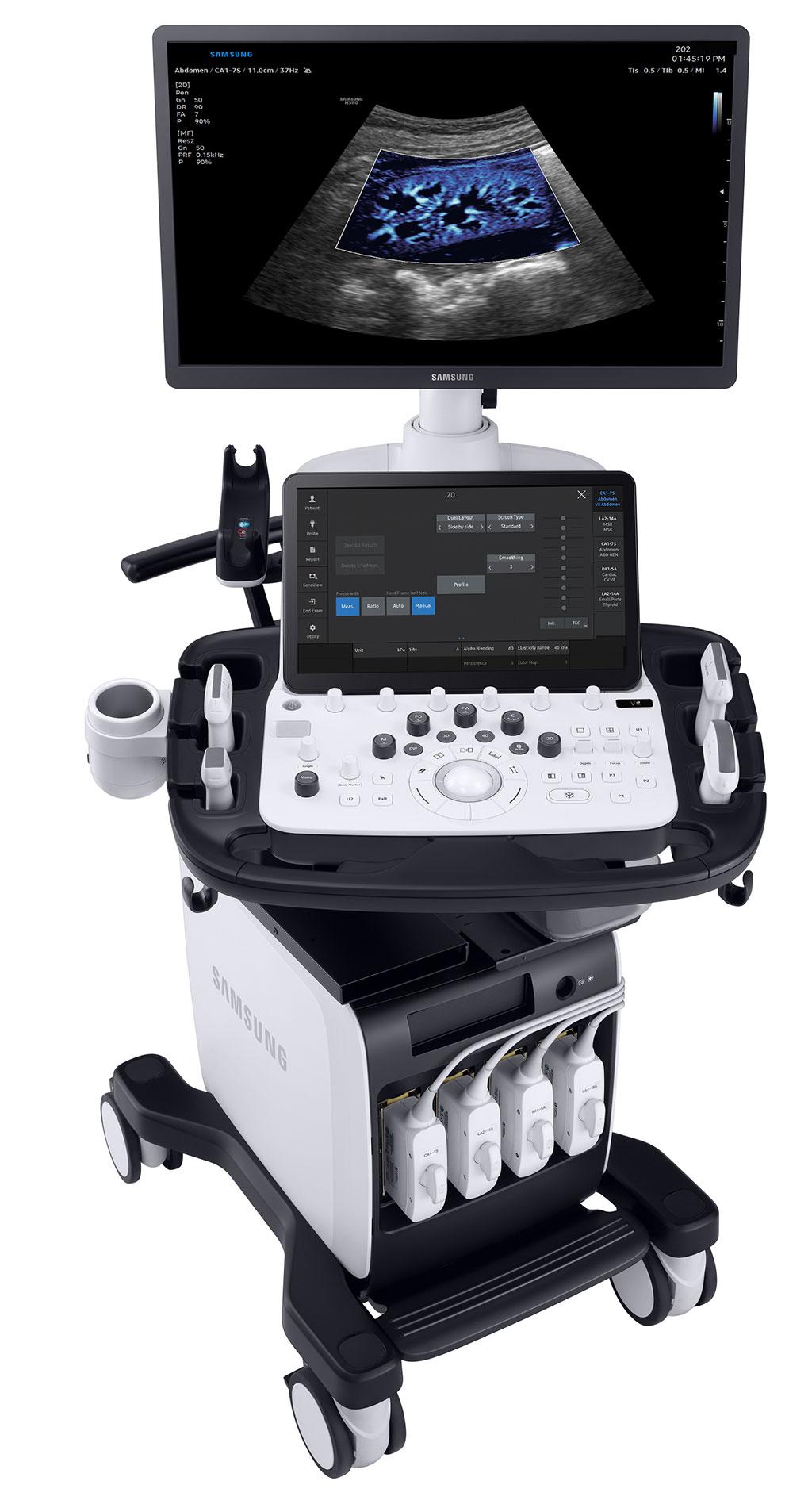 Image: V8 high-end ultrasound system (Photo courtesy of Samsung Electronics Co., Ltd.)