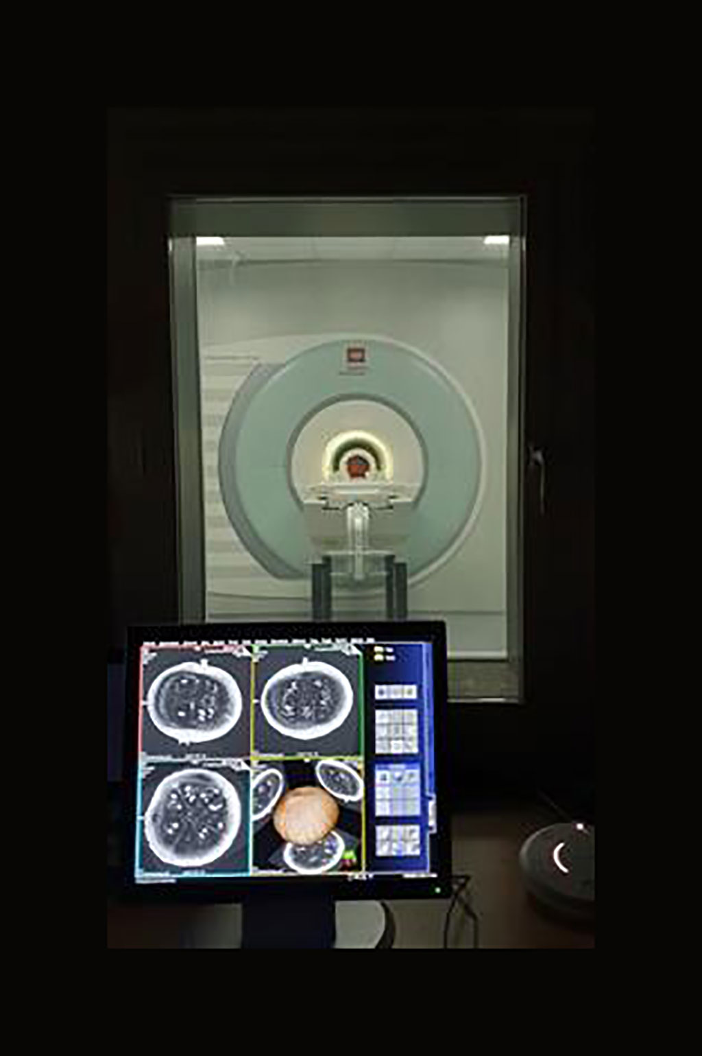Image: First images of a pumpkin taken from the world\'s most powerful 11.7 T human whole-body MRI (Photo courtesy of CEA)