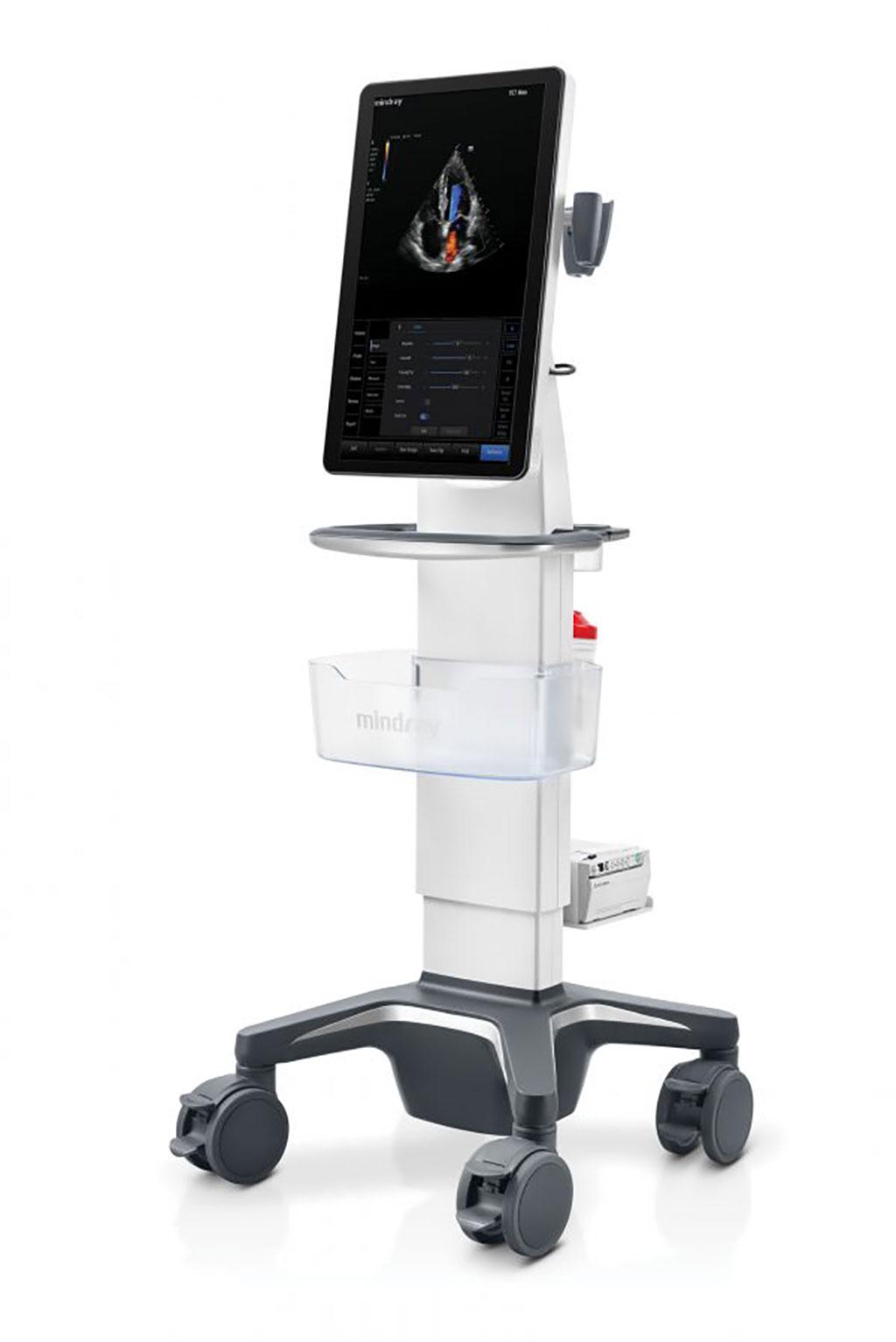 Image: Mindray TE7 Max Ultrasound System (Photo courtesy of Mindray)
