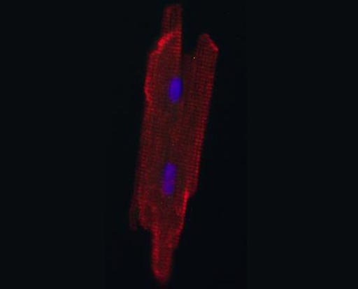 Image: An adult heart muscle cell, grown in a newborn rat heart (Photo courtesy of Chulan Kwon, Johns Hopkins University School of Medicine).