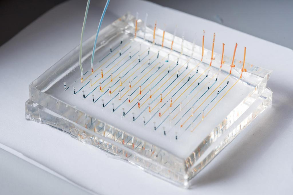 Image: A close-up image of a microfluidic chip used to fabricate nanoparticles that could be used to deliver therapeutic genes to specific organs of the body. Colored liquids have been added to highlight the channels (Photo courtesy of Rob Felt, Georgia Institute of Technology).