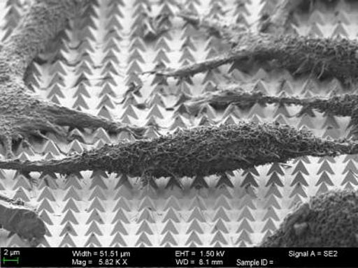 Image: A scanning-electron microscope (SEM) image of chemically-fixed HeLa cancer cells on the gold nanopyramid substrate. Following nanosecond laser pulses, the tips of the pyramids create tiny holes in the cell membranes, allowing molecular cargo to diffuse into the cells (Photo courtesy of Harvard University).