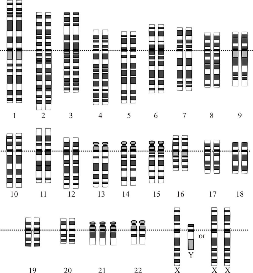 Image: Three copies of chromosome 21 characterize the karyotype for trisomy Down syndrome (Photo courtesy of Wikimedia Commons).
