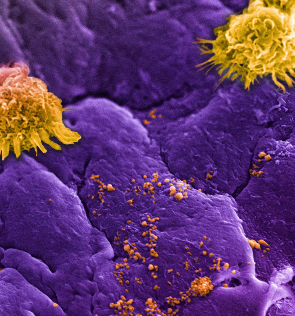 Image: Circulating white blood cells, commonly referred to as leukocytes (large yellow clusters), can be seen lining an inflamed vessel wall along with leukosomes (small yellow speckles). Leukosomes, designed to mimic white blood cells, go unnoticed as they accumulate at the inflamed vessel (purple background), allowing them to concentrate their therapeutic payload at the target site (Photo courtesy of Houston Methodist Hospital).