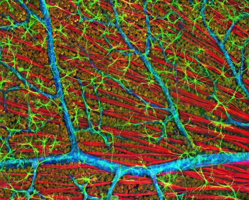 Image: A confocal micrograph of mouse retina depicting optic fiber layer (Photo courtesy of the National Center for Microscopy and Imaging Research, University of California, San Diego).